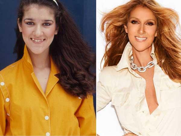 Dents Céline Dion