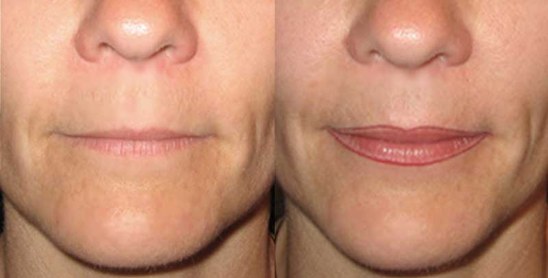 maquillage permanent des lèvres : les erreurs